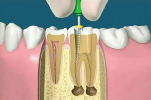 Root canal treatment(