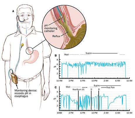 Esophageal pH Study
