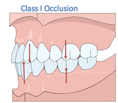 class 1 molar and cuspid relationship