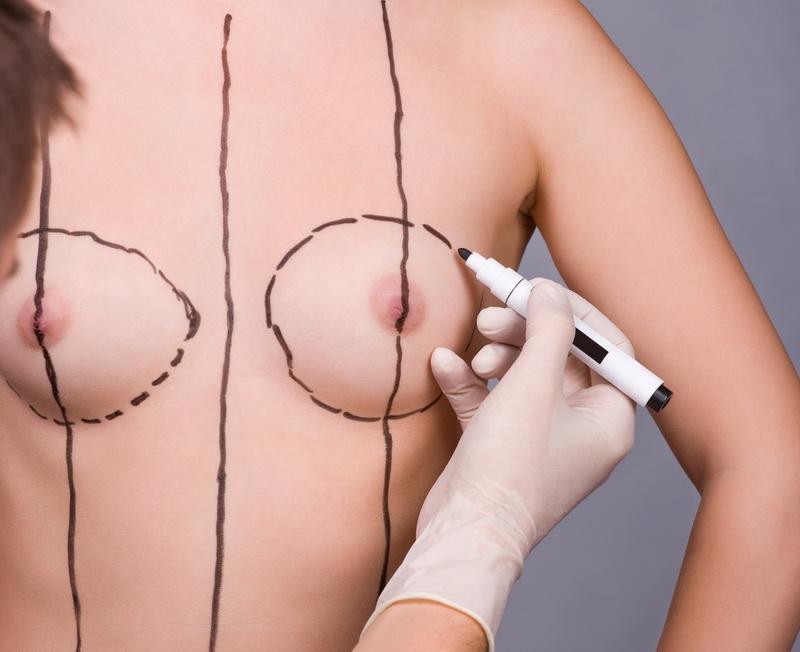 Цены в томске на увеличение груди